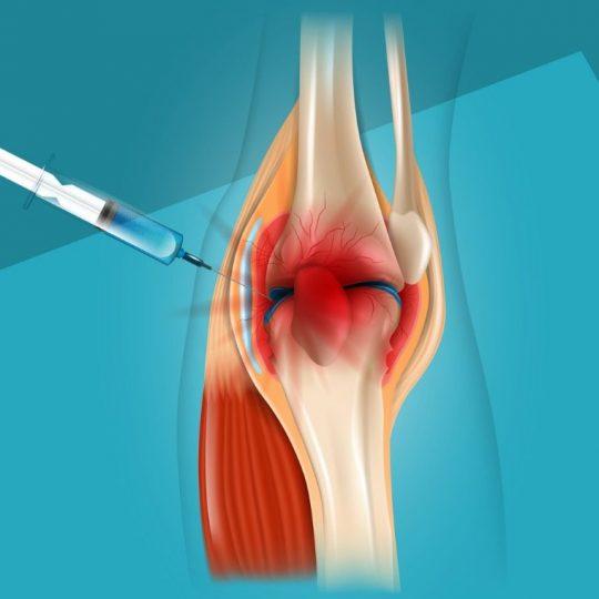 realistic-illustration-treatment-of-knee-pain-vector-id1082276036